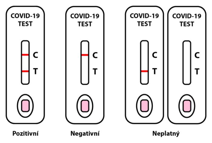 Pozitivní antigenní test ve škole